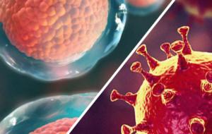 Células-tronco no tratamento de de pacientes com insuficiência respiratória relacionada ou não à Covid-19